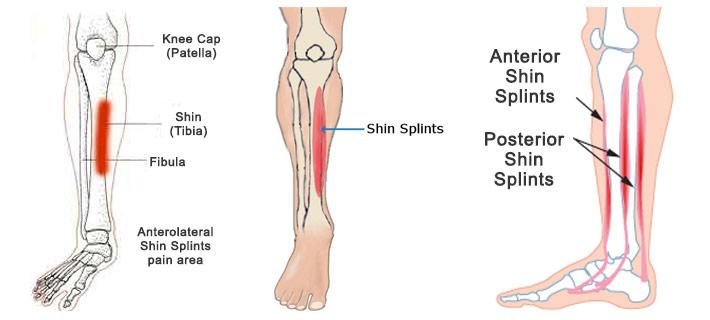 shin-splints-1