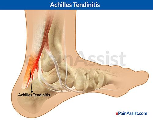 Achilles_Tendinitis